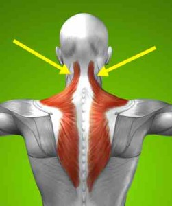 splenius capitis muscle pain