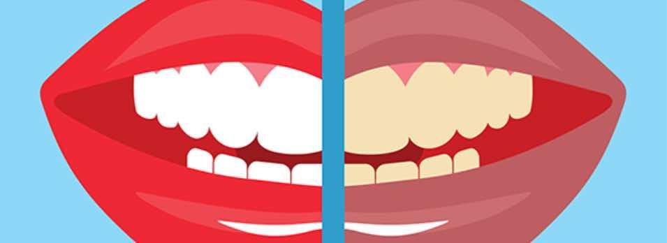 Taches de tabac dents de fumeur