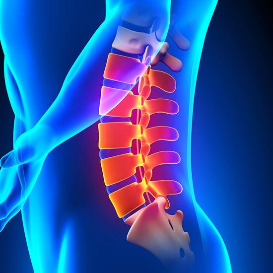 douleur lombaire bas du dos