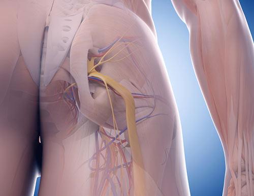Sciatique sympt mes traitements la sciatique c 39 est quoi for Douleur genou exterieur