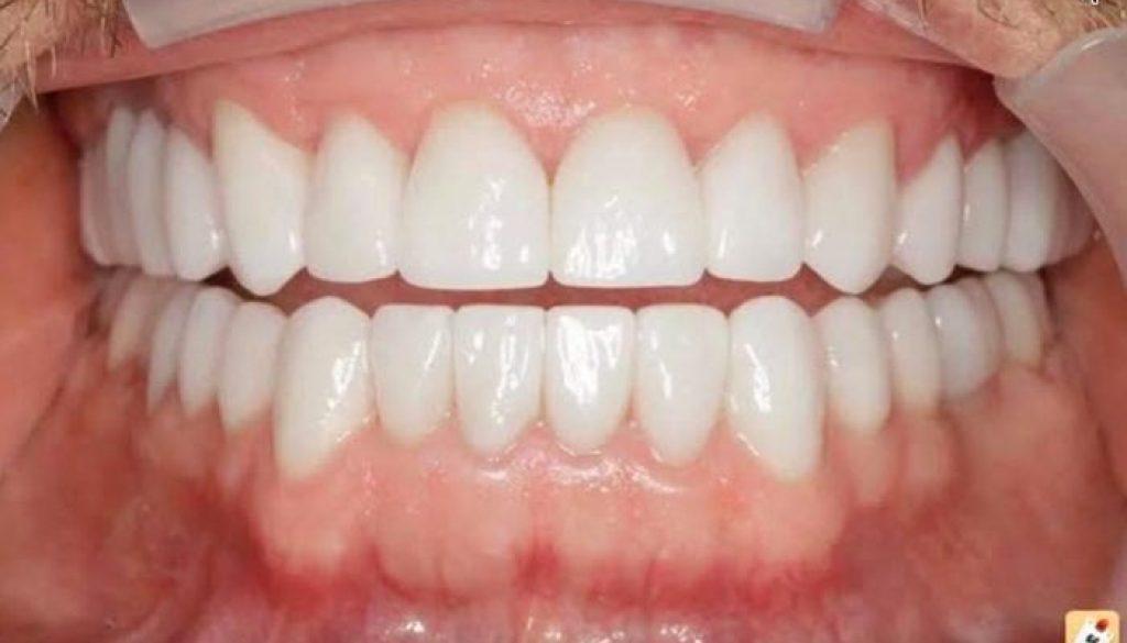 facettes dentaires en porcelaine emax avis prix avant apr s. Black Bedroom Furniture Sets. Home Design Ideas