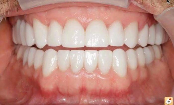 facettes-dentaires-1