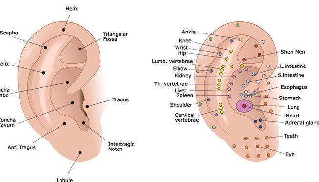 acupuncture oreille auriculothérapie