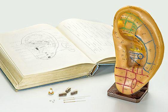 acupuncture de l'oreille carte