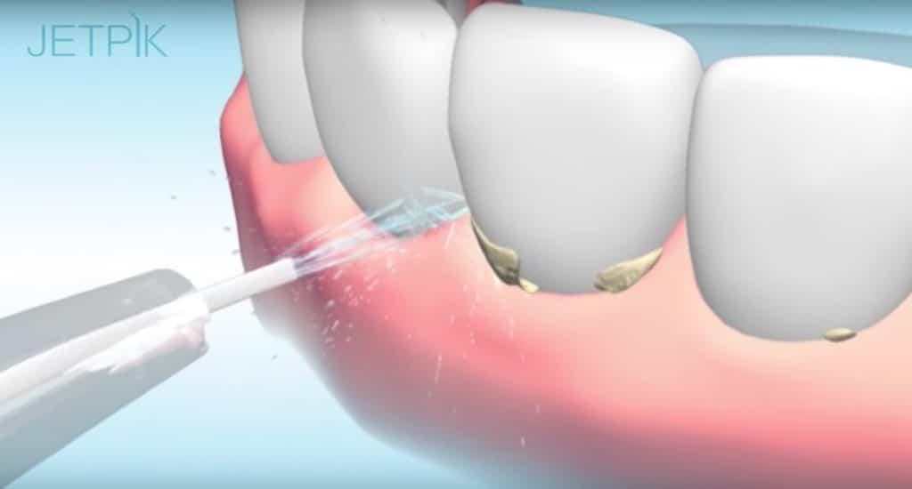 Avis Hydropulseur dentaire – brosse à dents sonique Jetpik