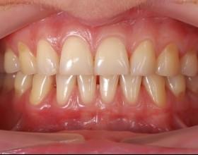 curetage dentaire pour des gencives saines