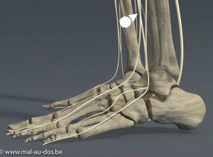Douleur sciatique pied