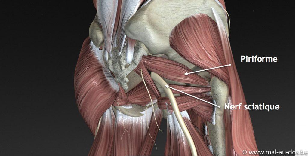 Piriforme et nerf sciatique