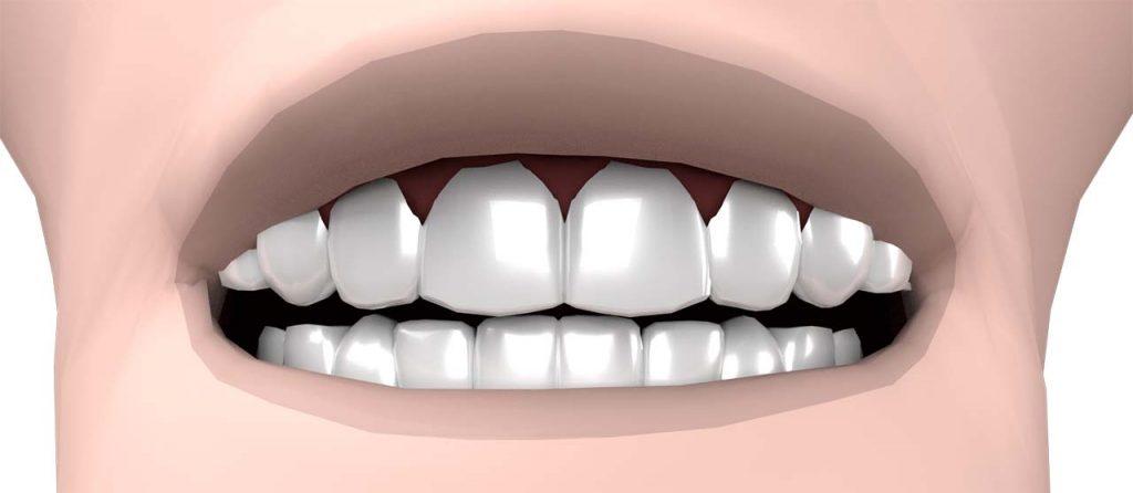 Facettes dentaires avis & prix: Emax+Cerec ou Labo ?