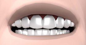 facettes dentaires avis emax cerec ou labo