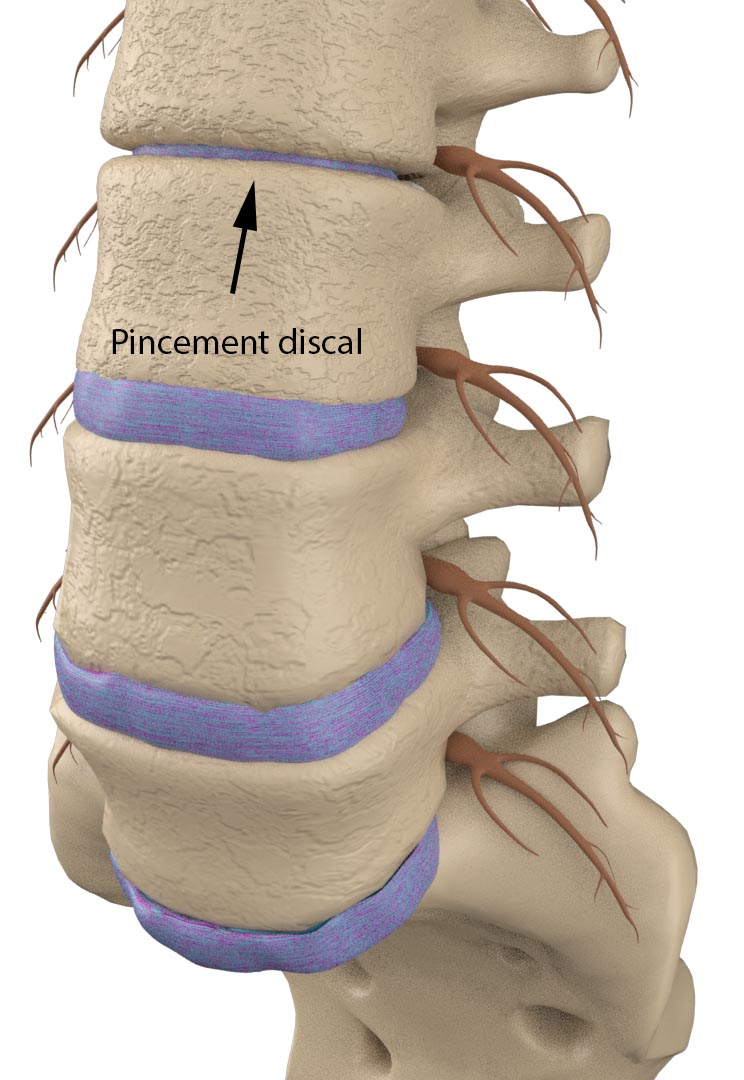 pincement discal