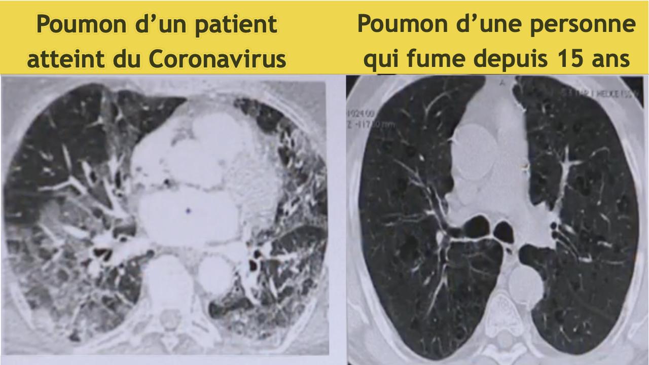 poumons covid vs poumon fumeur depuis 15 ans