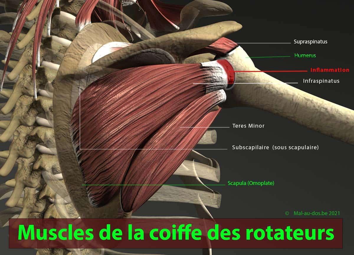 Inflammation muscles de la coiffe des rotateurs