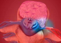 Hernie discale lombaire: symptômes, causes & traitement